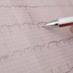 24 Stunden Blutdruckmonitoring